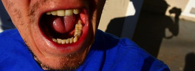 Holstebro åbner tandklinik for socialt udsatte